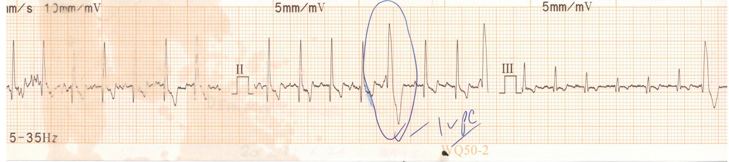 EKG taken for Louie, the eight year old Irish Wolfhound